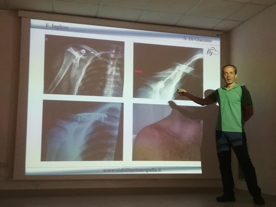 Francesco Inglese docente la spalla valutazione clinica e trattamento riabilitativo