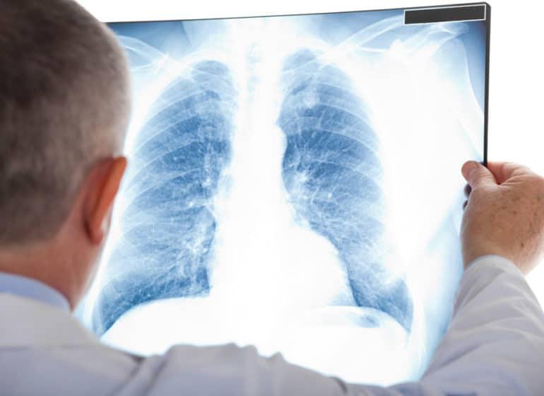 corsi ecm per fisioterapisti linfodrenaggio la diagnostica per immagini in riabilitazione