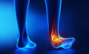 distorsione di caviglia eversione