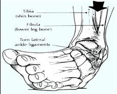 distorsione di caviglia inversione