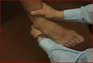 distorsione di caviglia test in inversione