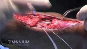 rottura del tendine d'achille ricostruzione