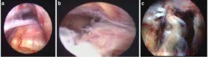 rottura del tendine d'achille ricostruzione endoscopica