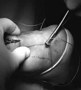 rottura del tendine d'achille ricostruzione tecnica mini open