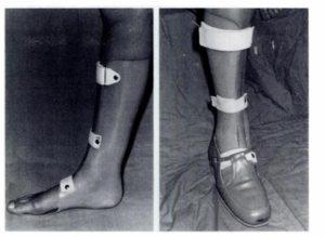 rottura del tendine d'achille splint