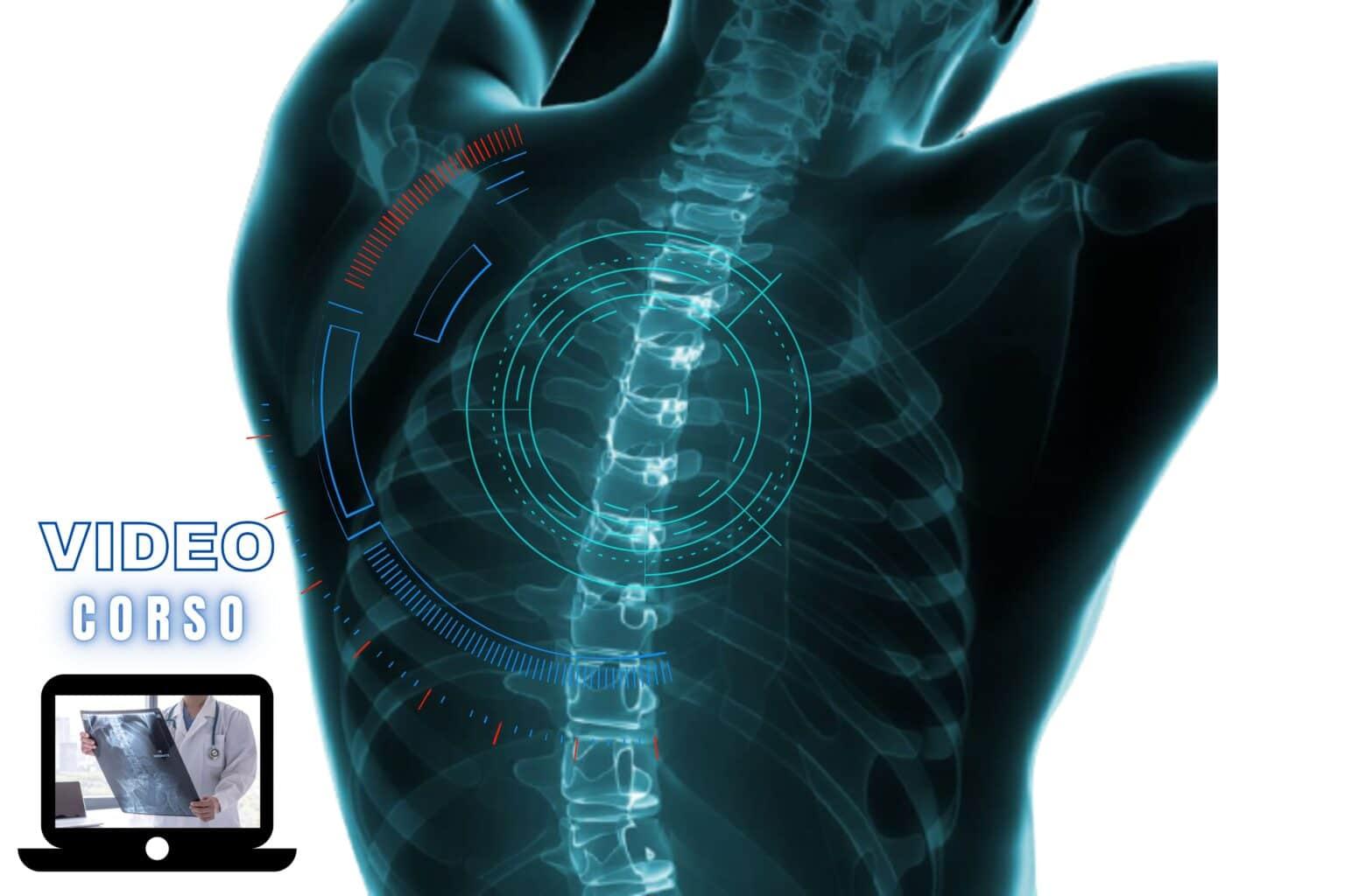 l'imaging del rachide dal sospetto clinico alla diagnosi